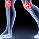Dolegliwość reumatyczna- symptomy oraz kuracja